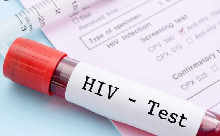 Pengobatan HIV: Panduan Lengkap
